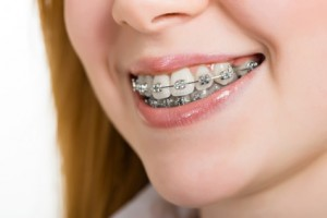 orthodontics-braces